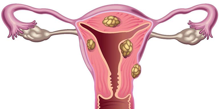 Causas anatómica en los abortos de repetición